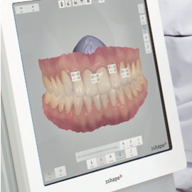 clyde-dental-ottawa-digital-impressions2